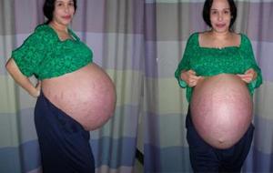 八つ子妊娠中のおなか