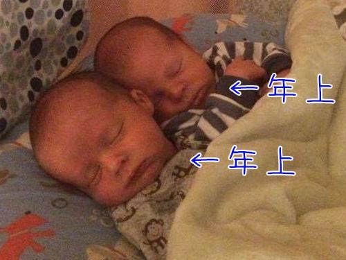生まれた双子が両方とも兄貴になった珍出産