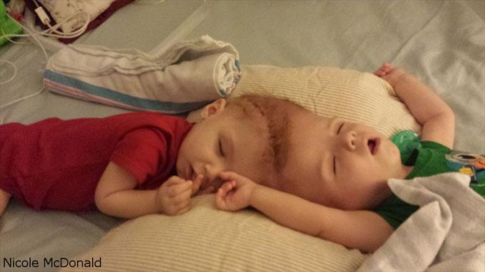 眠っているアナイアスとジェイドン