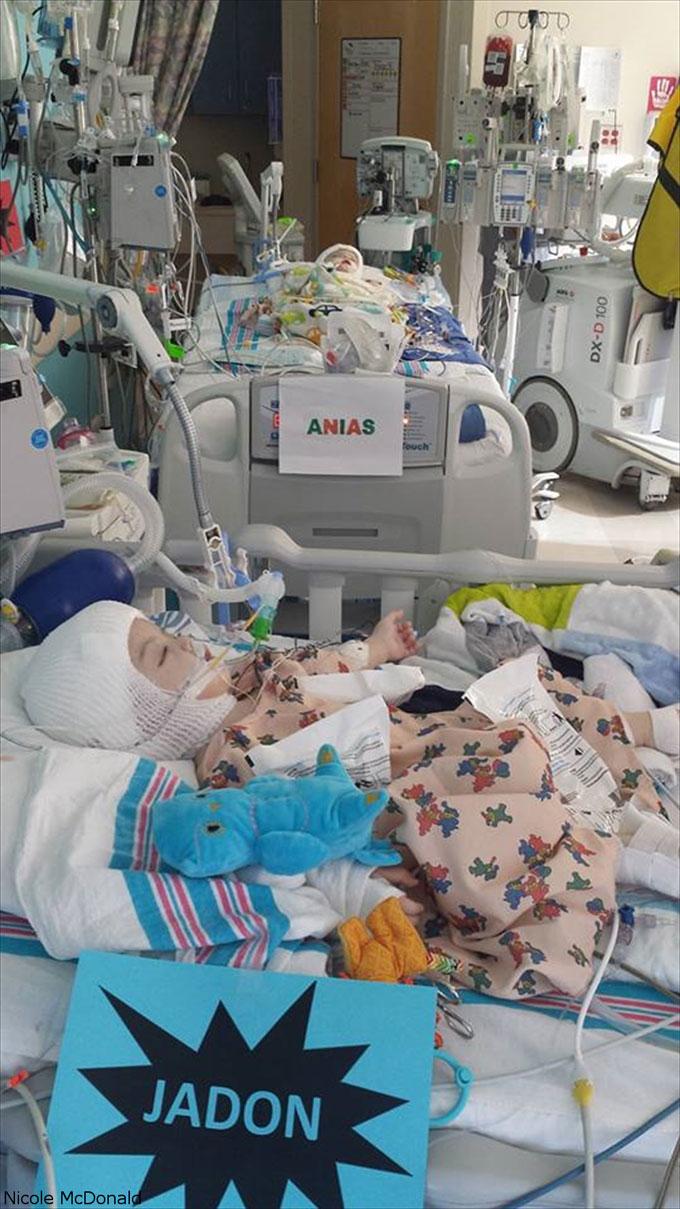 手術後のアナイアスとジェイドン