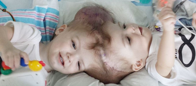 頭部が一緒になって生まれた双子の赤ちゃん