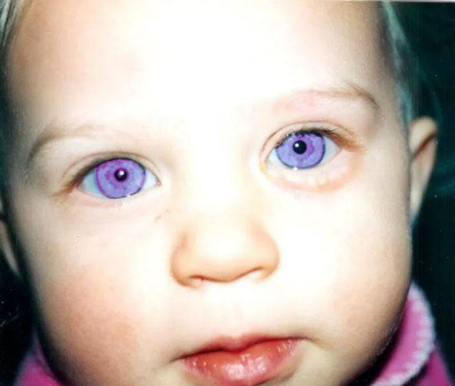 紫いろの目を持つ少年